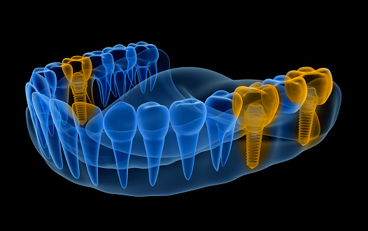x-ray image of multiple dental implant