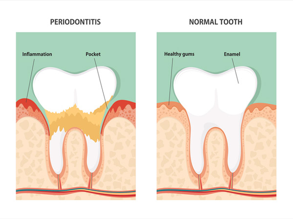 Diagram of periodontitis and health tooth at Fairbanks Periodontal Associates in Fairbanks, AK