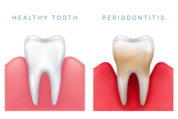 Comparison illustration of healthy tooth and periodontitis